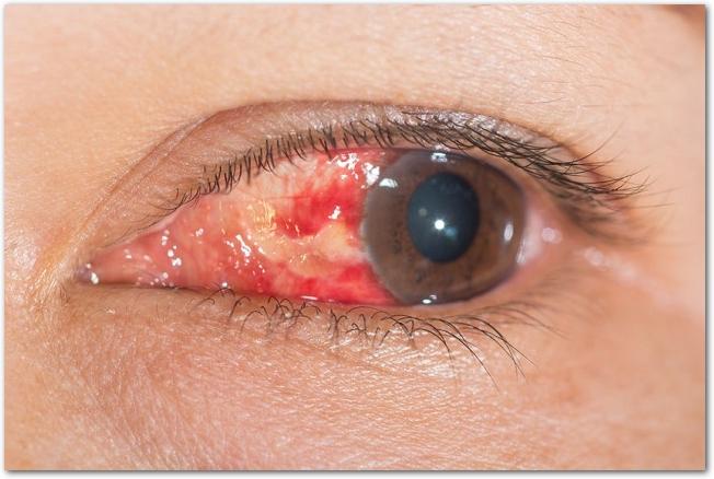 結膜下出血で白目が赤くなっている目の様子